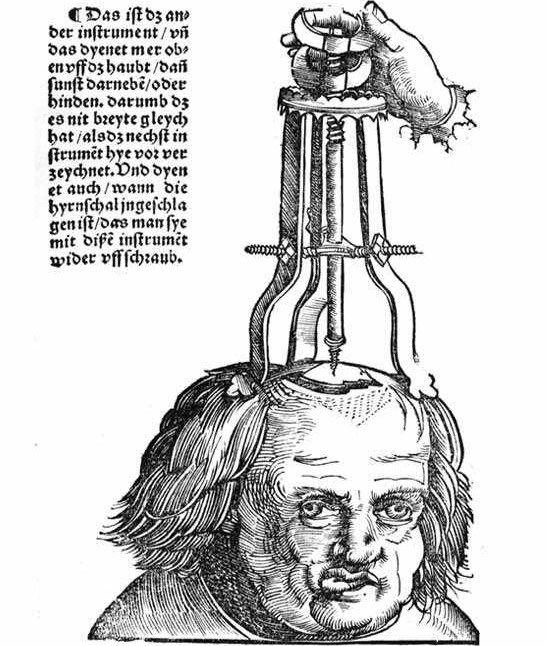Hans von Gersdorff, Feldbuch der Wundarzney, Behandlung einer Schädelwunde (Treatment of a skull injury)