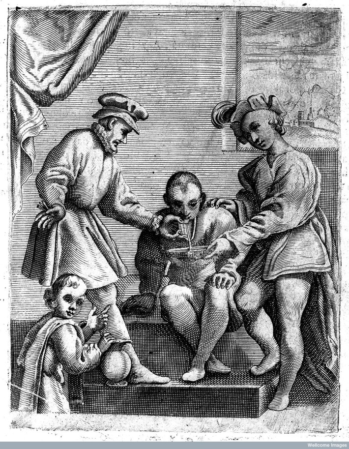 Bloodletting from the tongue being performed on a male. Tibero Malfi, Il barbiere... libri tre. Naples, 1626. ©Wellcome Images, Wellcome Library, London.