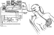 """Schematic  drawing  of  the  device  employed  for  obtaining  local  gastric  hypothermia. In Wangensteen, Owen, Harlan Root, Conrad B. Jenson, et al. """"Depression of Gastric Secretion and Digestion by Gastric Hypothermia: Its Clinical Use in Massive Hematemesis."""" Surgery 44, no. 2 (1958): 265-74, illus. p. 270."""