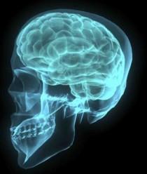 brain-640x480