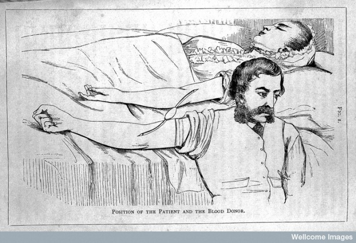 J. H. Aveling, `Immediate transfusion in England,' Obstetrics Journal, 1873, 1, 303. © Wellcome Library, London.
