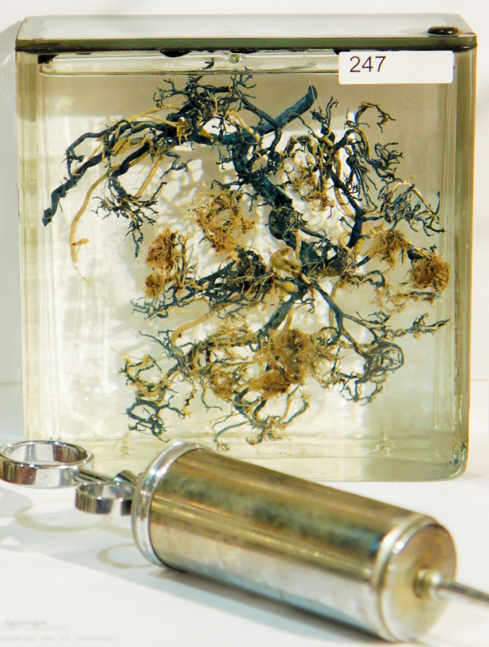 Fig. 4: Corrosion cast placenta (1927). The blue and silver colloidal injections show the umbilical veins and arteries respectively. Preparations similar to these were crucial to the 18th-century observation that blood did not freely flow between maternal and fetal bodies. Maude Abbott Medical Museum Collection.
