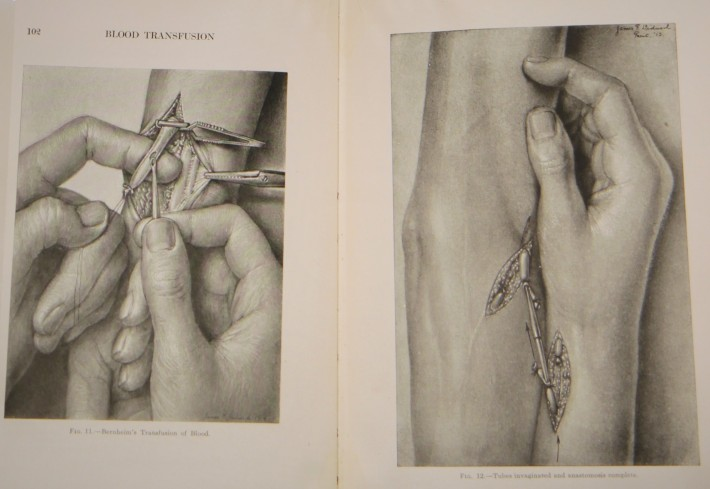 Fig. 6: George Crile, Hemorrhage and Transfusion: An Experimental and Clinical Research (New York, 1909): End-to-end anastomosis of blood vessels with a silver cannula for the direct transfusion of blood. Humanities and Social Sciences Library Collection.