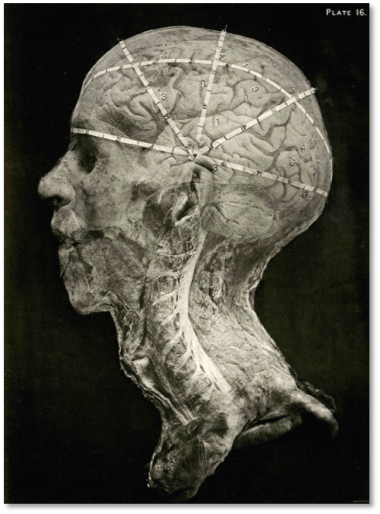 Alec Fraser, A Guide to Operations on the Brain (London, 1890). A composite photograph, which, following in the footsteps of Francis Galton, was a very trendy thing to do. © National Library of Medicine.
